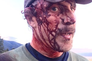 Hiker Todd Orr was Mauled by a Grizzly. Twice.
